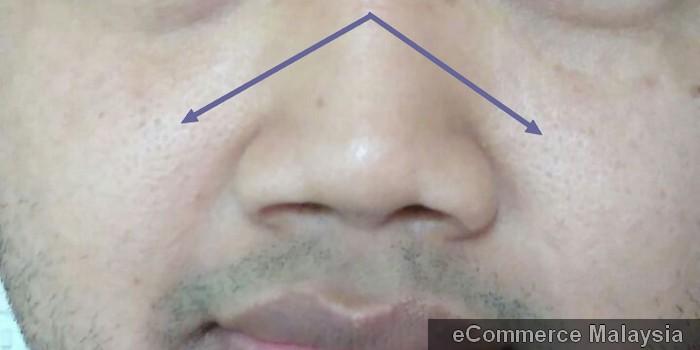 Bintik bintik kecil liang pori pori di kulit muka